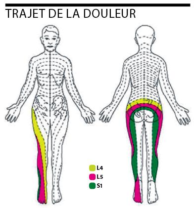La racine de la consoude à la hernie intervertébrale